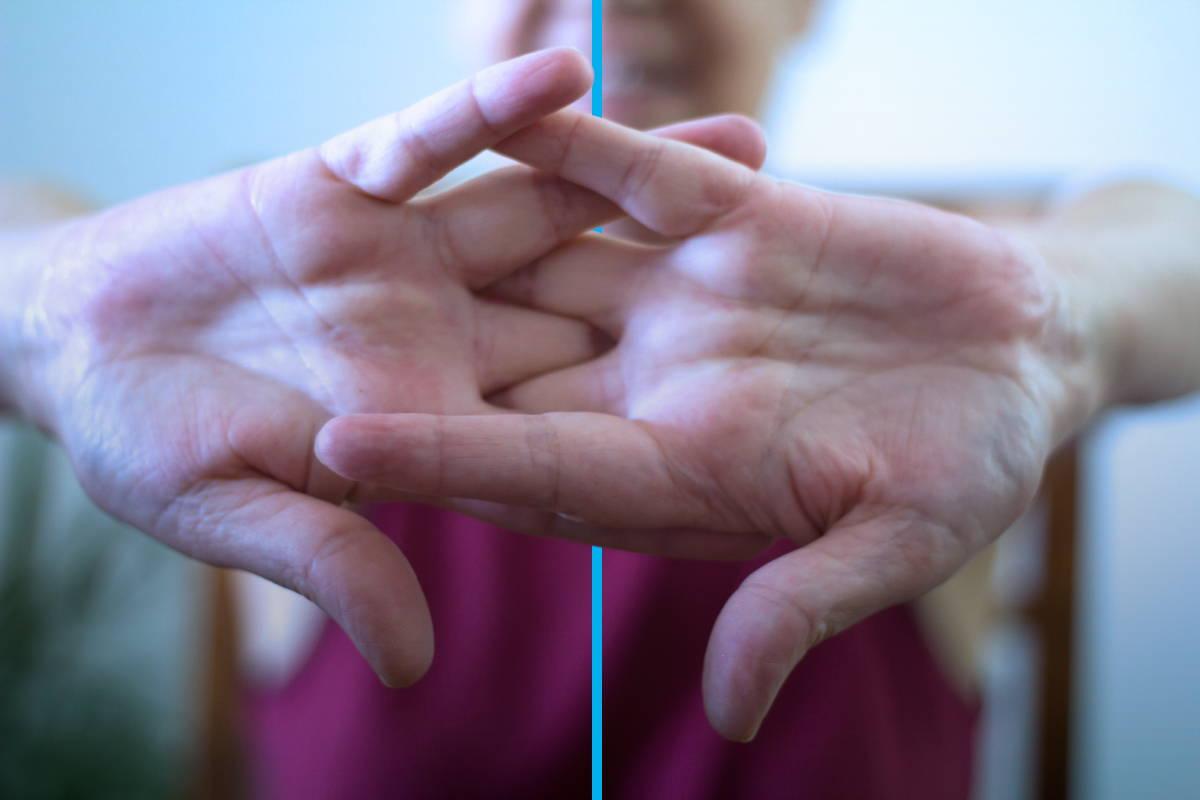 Osteoarthritis Myths Busted